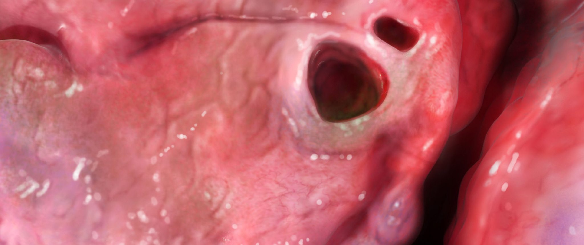 cystic fibrosis - photo #21